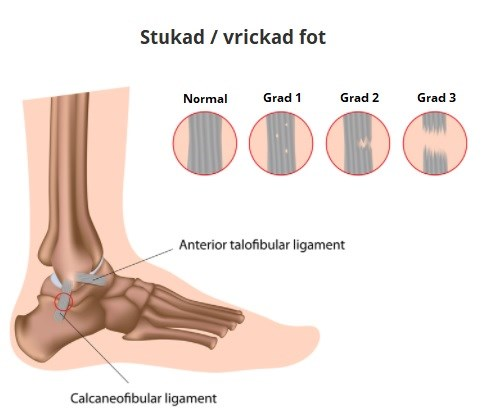 stukad fot utan svullnad